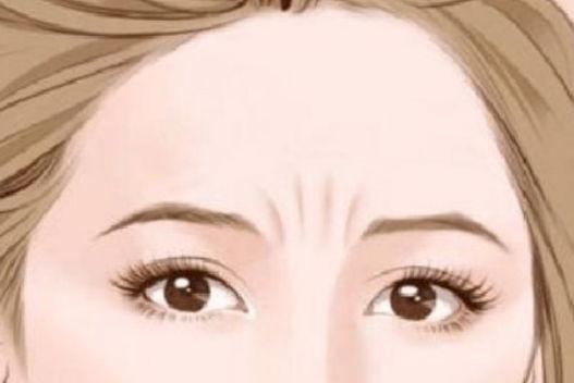 眉间纹的去除方法